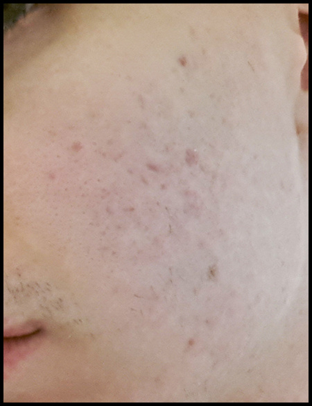 acne face 2 by TaylorAhlgreen
