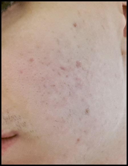 acne face 2