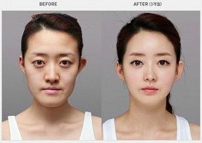 Lee Min Ho Plastic Surgery by PlasticSurgerybeforeandafter86388