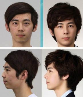 Korean Plastic Surgery by PlasticSurgerybeforeandafter86388