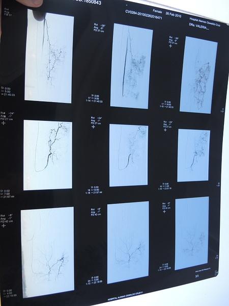 Arteriografia Embolização 2010 by MarlosMiranda