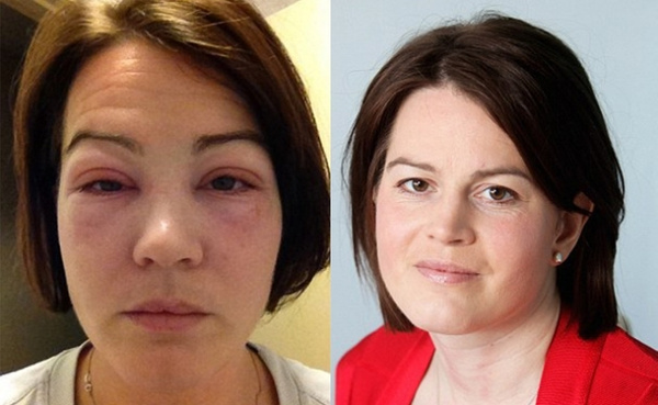 sarah-fletcher-eyelash-extension-allergic-reaction by AngieSmith47433