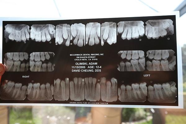 x-ray by Matthewo6