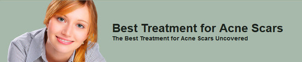 Best Treatment for Acne Scars by BesttreatmentForacnescars