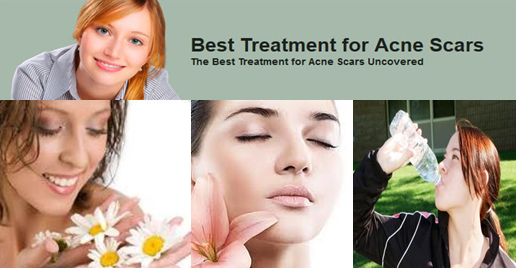 Best Treatment for Acne Scars
