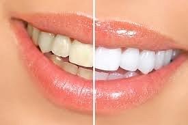 Dentist  In Edmonton by DentistInedmonton