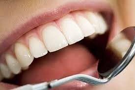 Wisdom Teeth Surgery  In Edmonton