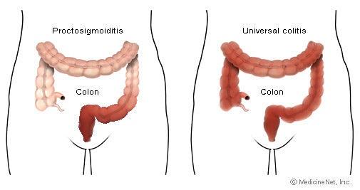 Ulcerative Proctitis