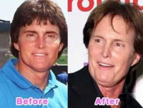 Before And After Plastic Surgery by CelebrityPlasticsurgery