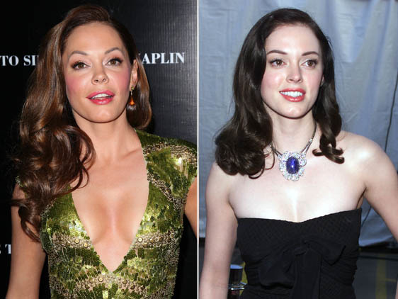 Rose Mcgowan Plastic Surgery by CelebrityPlasticsurgery
